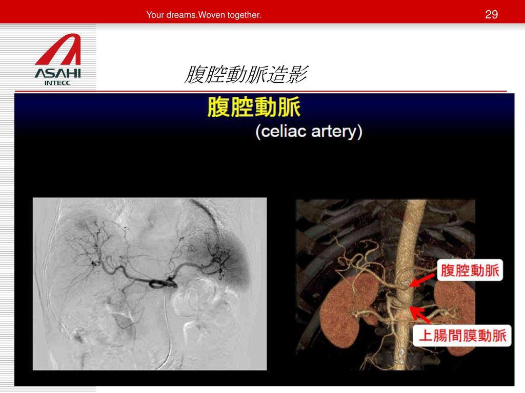 腹腔動脈造影