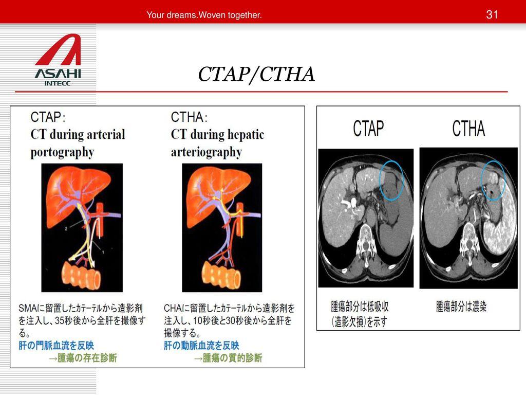CTAP/CTHA