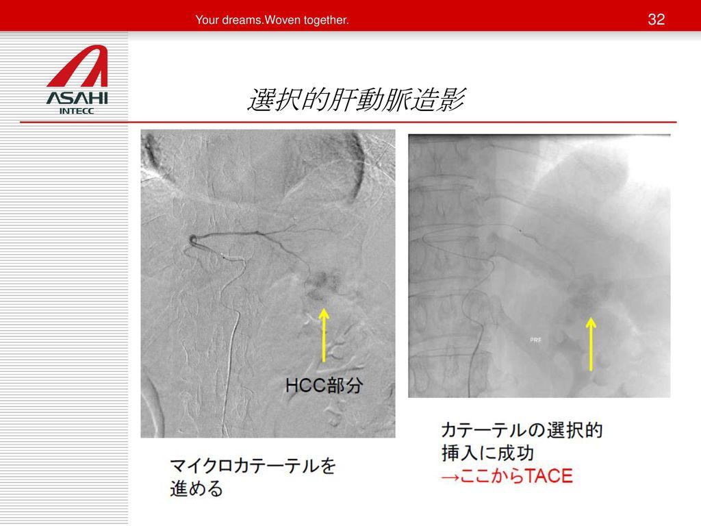 選択的肝動脈造影