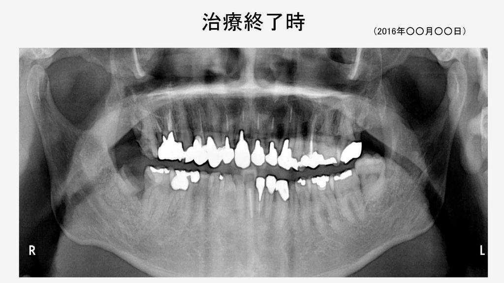 初 診 時 (2016年○○月○○日) 上顎. 動揺. PPD. B. P. 8. 7. 6. 5. 4. 3. 2. 1. L. 下顎. PPD:Probing Pocket Depth(mm)