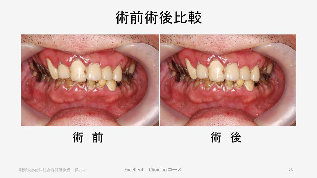 診 断 欠損 慢性歯周炎 う蝕症 慢性根尖性歯周炎 急性歯髄炎 7 6 5 4 3 2 1 7 6 5 4 3 2 1 7 6 5 4 3