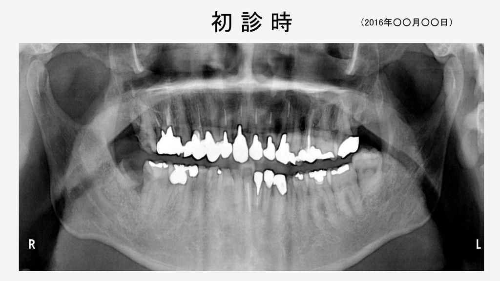 ○○○○の一症例(タイトルを入力) 歯科医師 ○○ ○○ 医療法人○○会 ○○歯科医院 Excellent Clinician コース