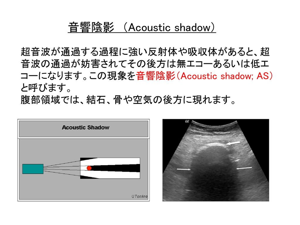 音響陰影 (Acoustic shadow)