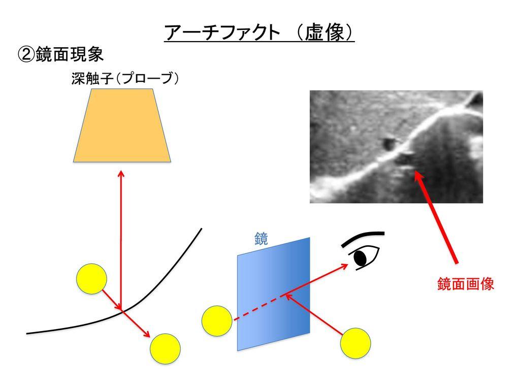 アーチファクト (虚像) ②鏡面現象 深触子(プローブ) 鏡 鏡面画像