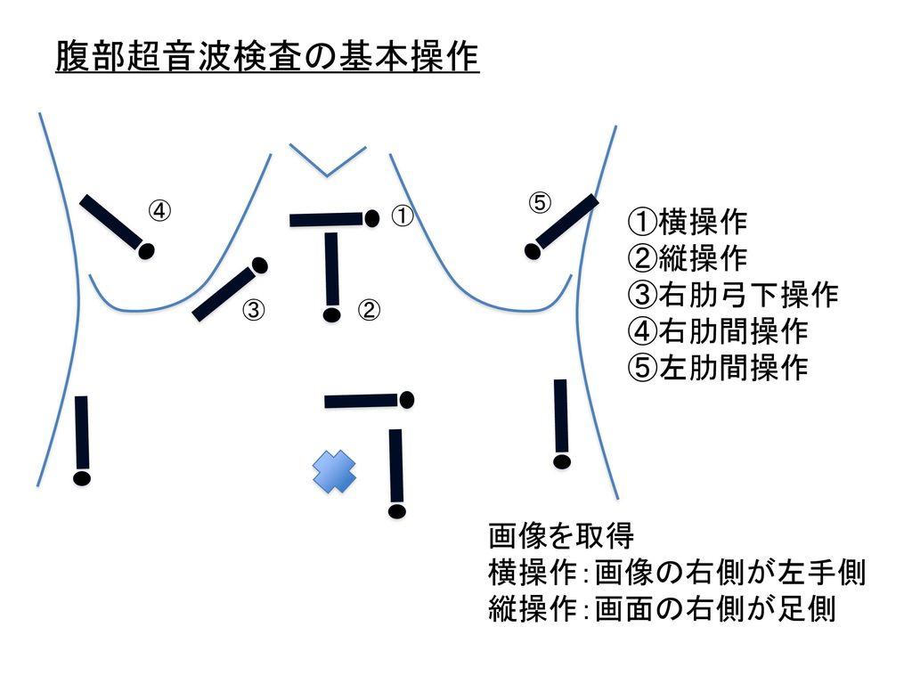 腹部超音波検査の基本操作 ①横操作 ②縦操作 ③右肋弓下操作 ④右肋間操作 ⑤左肋間操作 画像を取得 横操作:画像の右側が左手側