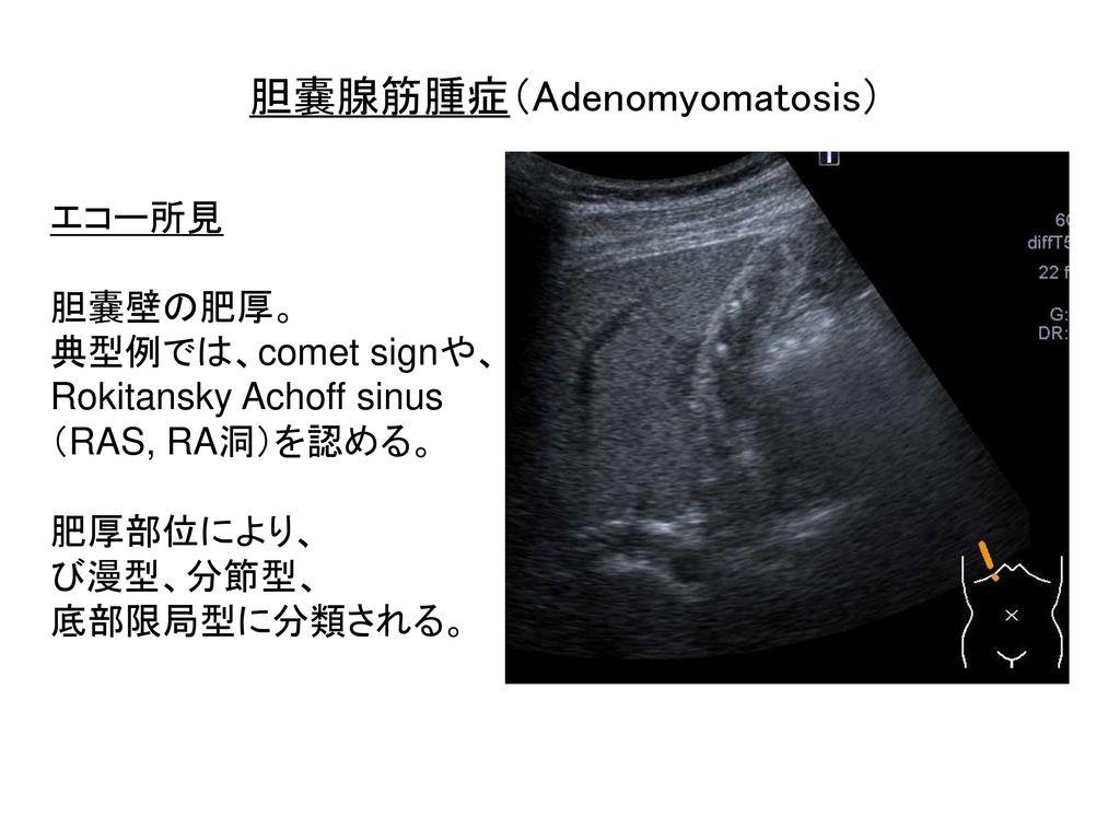 胆嚢腺筋腫症(Adenomyomatosis)