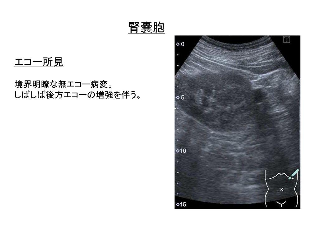 腎嚢胞 エコー所見 境界明瞭な無エコー病変。 しばしば後方エコーの増強を伴う。