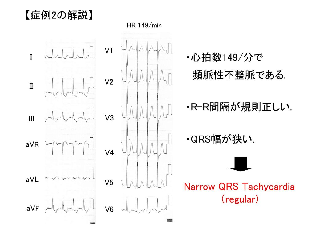 Narrow QRS Tachycardia