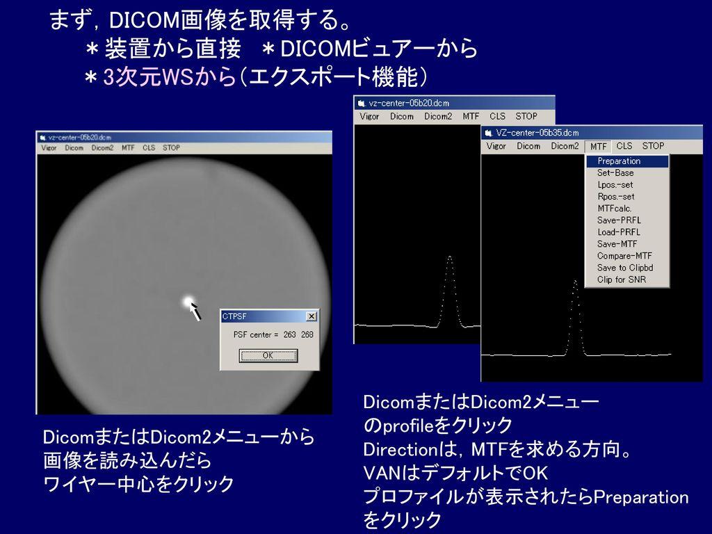 まず,DICOM画像を取得する。 *装置から直接 *DICOMビュアーから *3次元WSから(エクスポート機能)