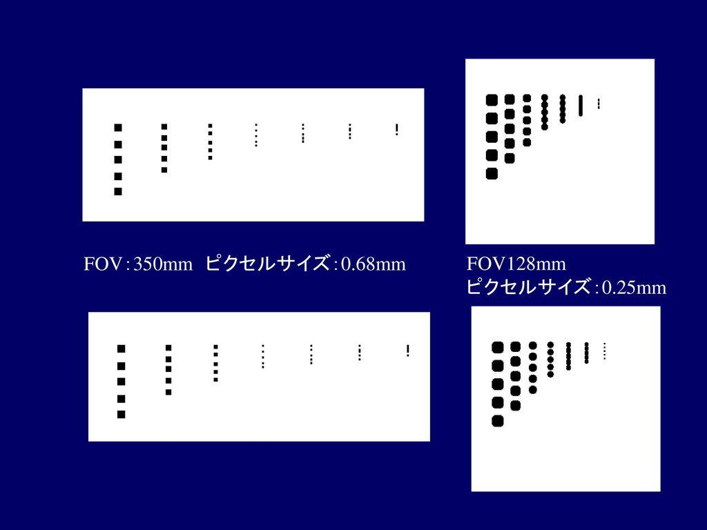 FOV:350mm ピクセルサイズ:0.68mm FOV128mm ピクセルサイズ:0.25mm
