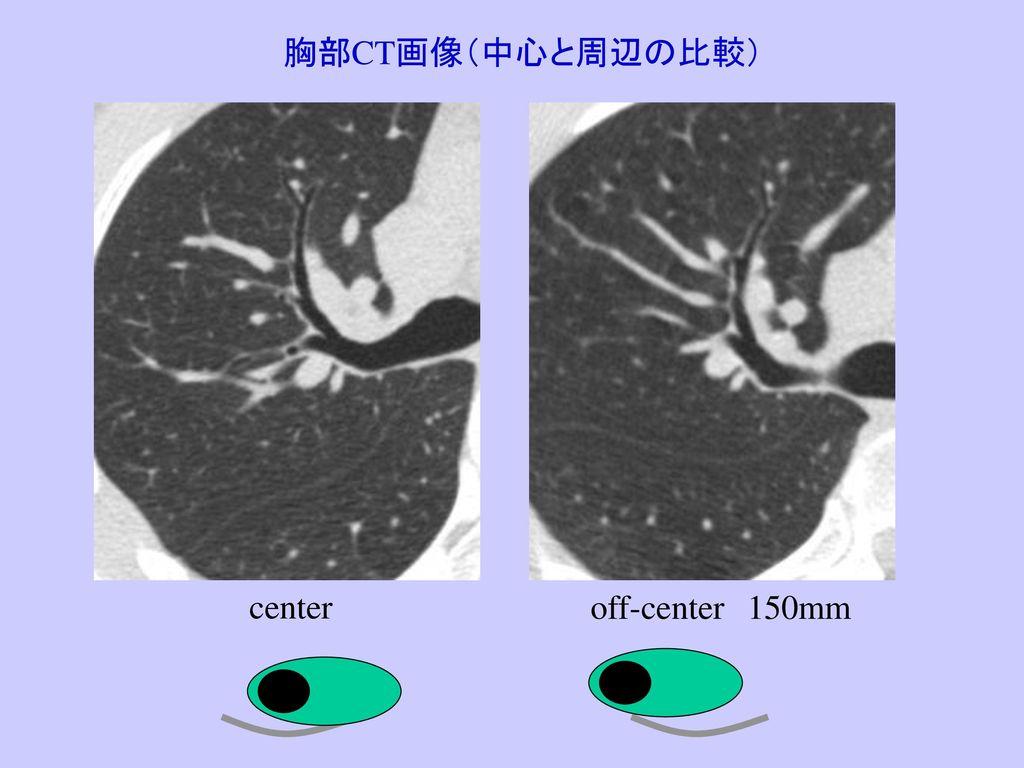 胸部CT画像(中心と周辺の比較) center off-center 150mm