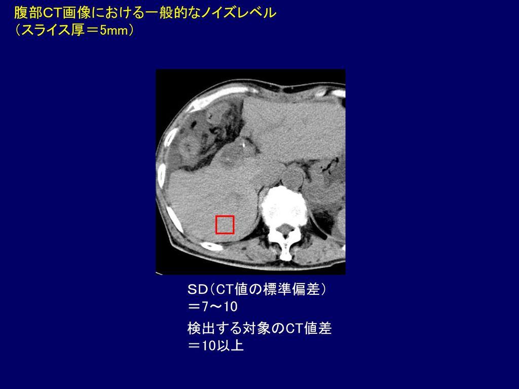 腹部CT画像における一般的なノイズレベル