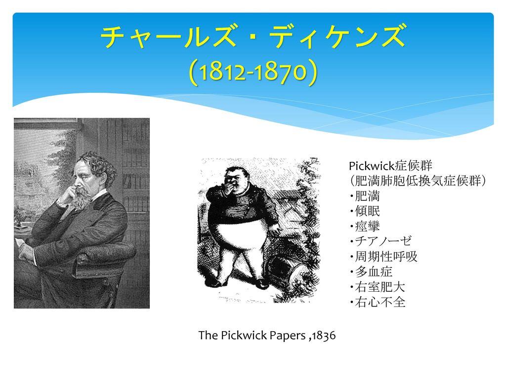 チャールズ・ディケンズ (1812-1870) Pickwick症候群 (肥満肺胞低換気症候群) ・肥満 ・傾眠 ・痙攣 ・チアノーゼ