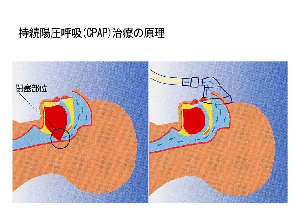 CPAPの原理