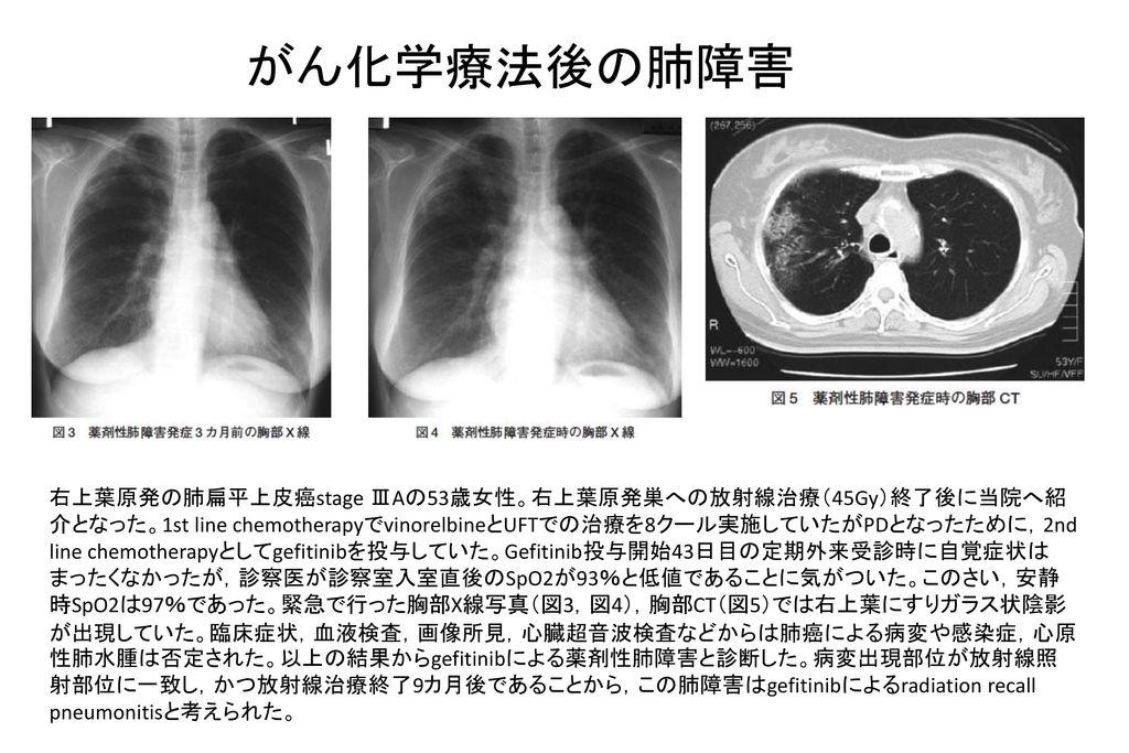 がん化学療法後の肺障害