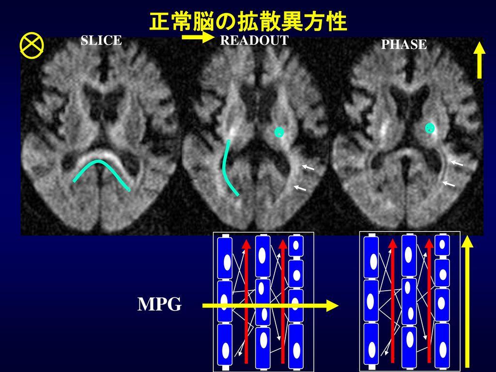 正常脳の拡散異方性 SLICE READOUT PHASE MPG