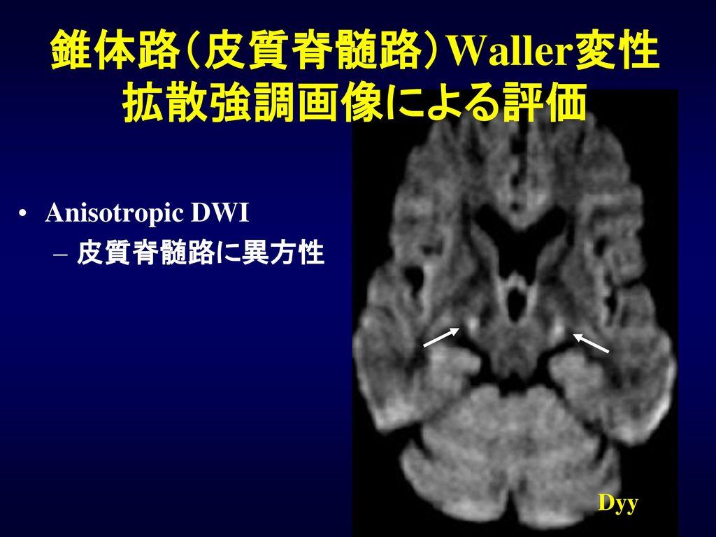 錐体路(皮質脊髄路)Waller変性 拡散強調画像による評価