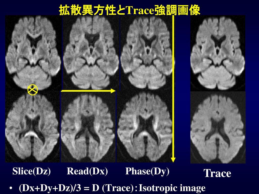 拡散異方性とTrace強調画像 Trace