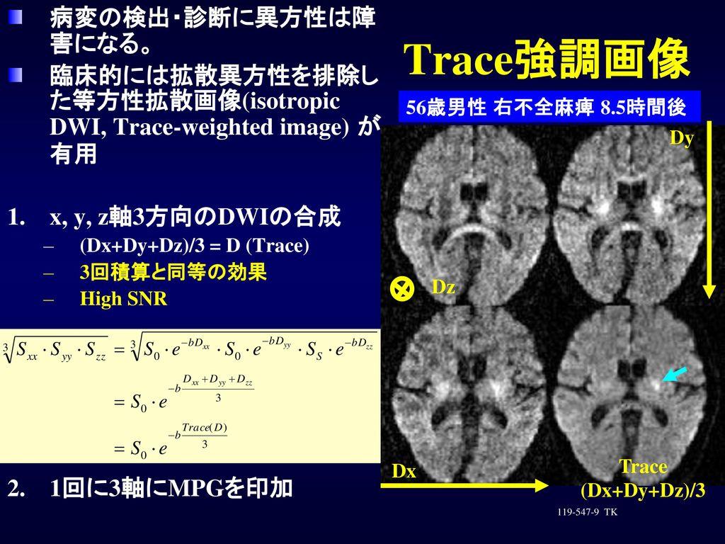 Trace強調画像 病変の検出・診断に異方性は障害になる。