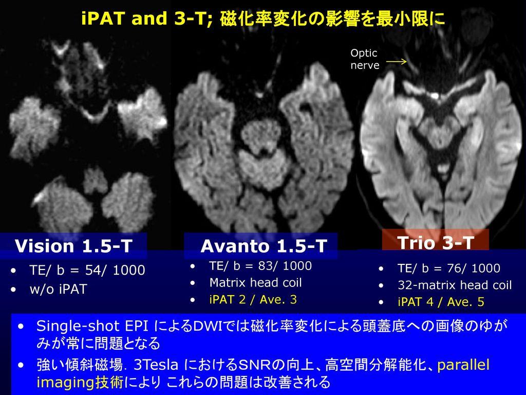 iPAT and 3-T; 磁化率変化の影響を最小限に