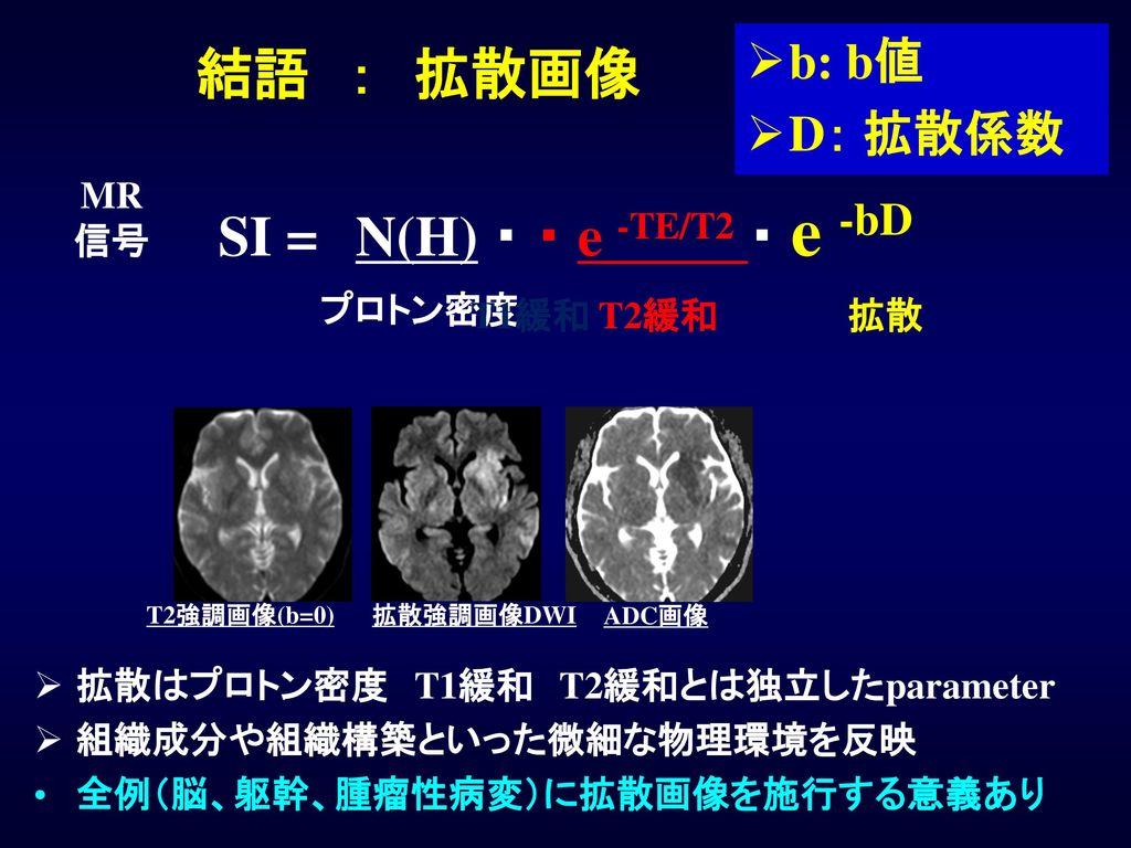 SI = N(H) ・ ・ e -TE/T2 ・ e -bD