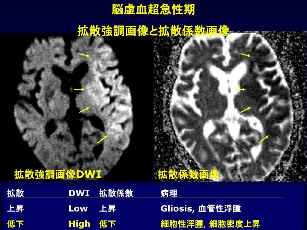 脳虚血超急性期 拡散強調画像と拡散係数画像