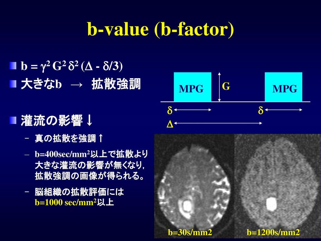 b-value (b-factor) b = g2 G2 d2 (D - d/3) 大きなb → 拡散強調 灌流の影響↓ G MPG d D