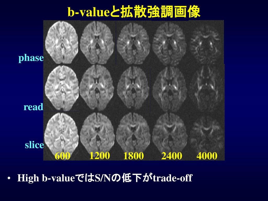 b-valueと拡散強調画像 slice read 600 1200 1800 2400 4000 phase