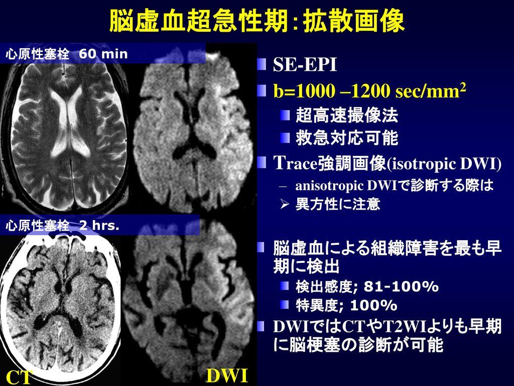 脳虚血超急性期:拡散画像 SE-EPI b=1000 –1200 sec/mm2 Trace強調画像(isotropic DWI) DWI