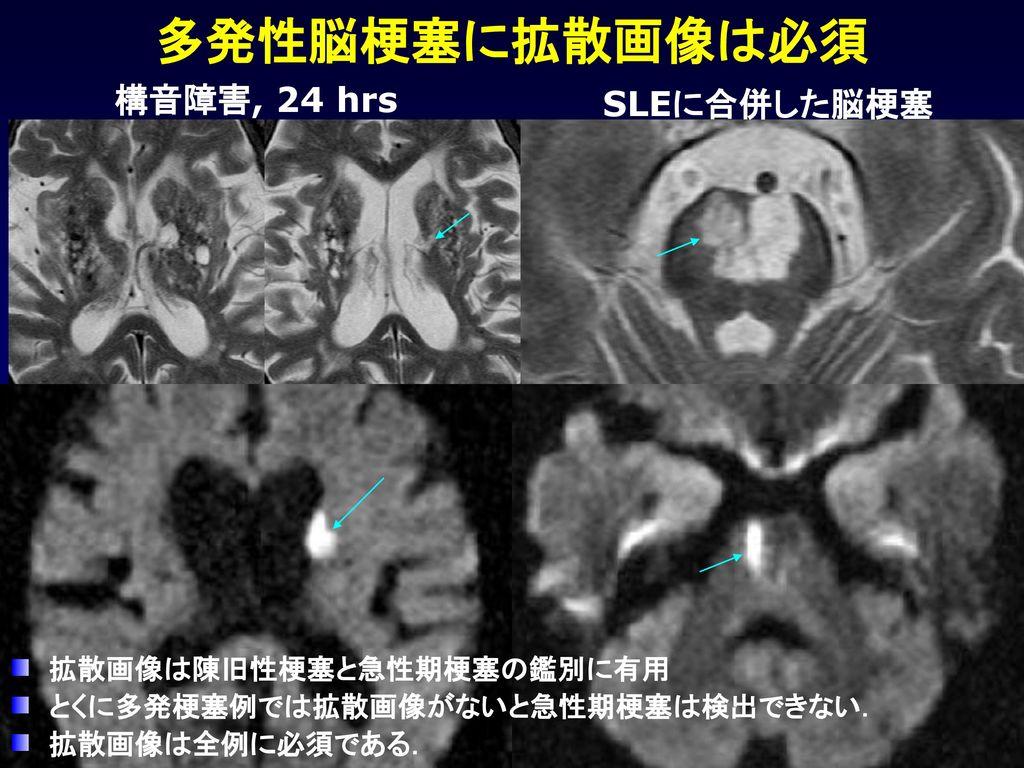 多発性脳梗塞に拡散画像は必須 構音障害, 24 hrs SLEに合併した脳梗塞 拡散画像は陳旧性梗塞と急性期梗塞の鑑別に有用