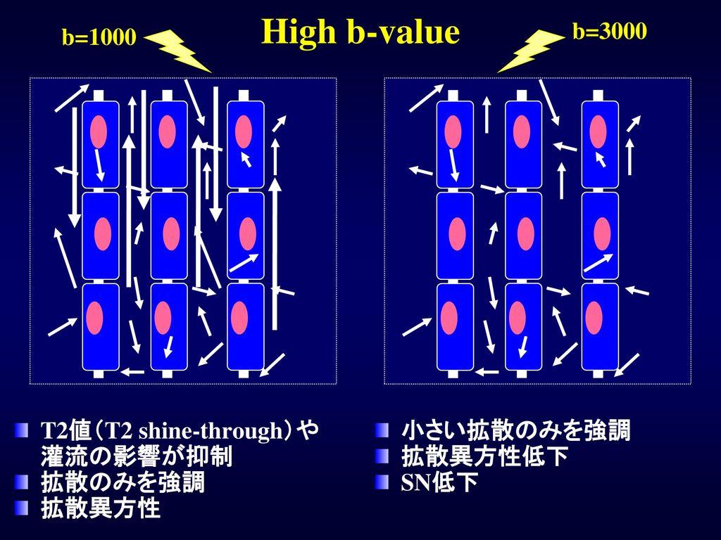 High b-value b=3000 b=1000 T2値(T2 shine-through)や灌流の影響が抑制 拡散のみを強調