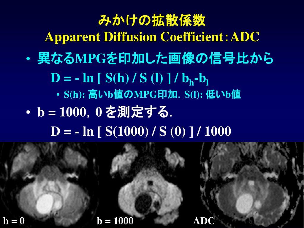 みかけの拡散係数 Apparent Diffusion Coefficient:ADC