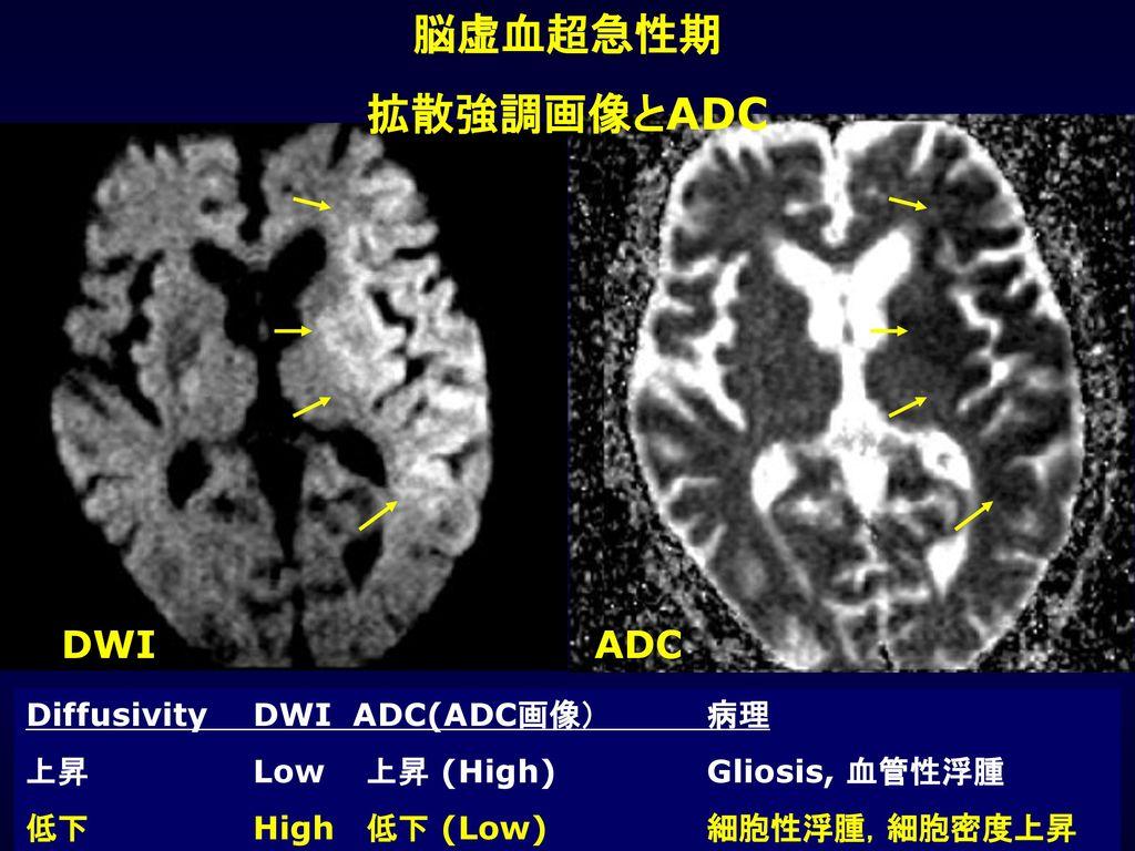 脳虚血超急性期 拡散強調画像とADC DWI ADC Diffusivity DWI ADC(ADC画像) 病理
