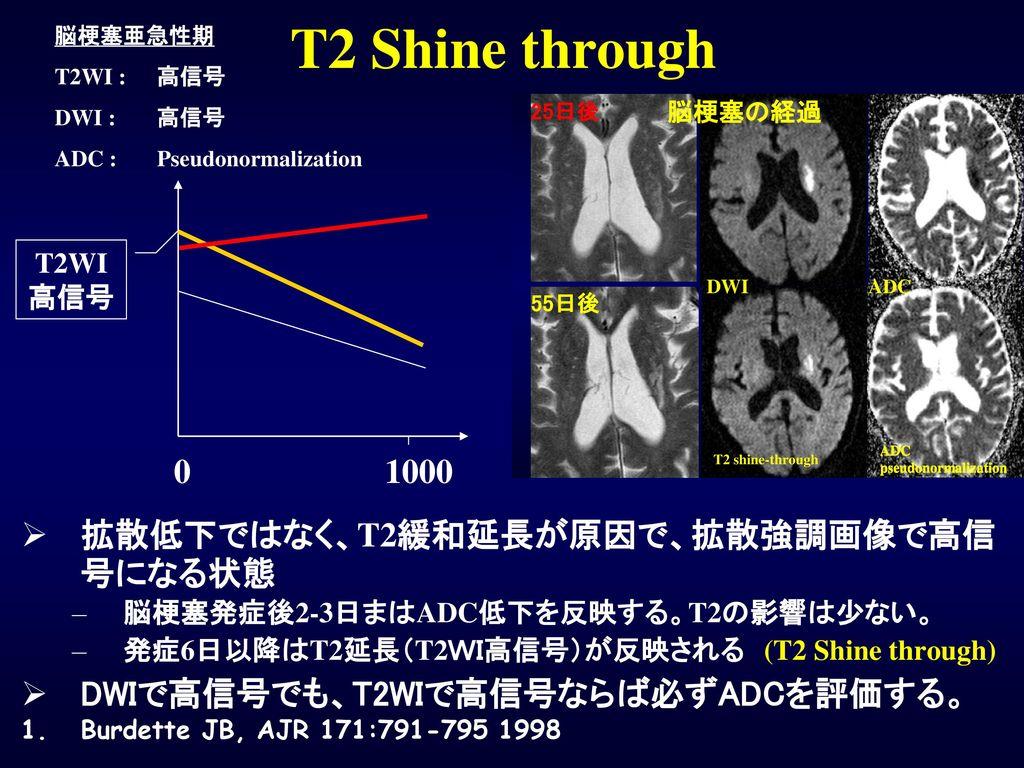 T2 Shine through 1000 拡散低下ではなく、T2緩和延長が原因で、拡散強調画像で高信号になる状態