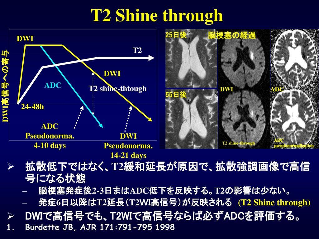 T2 Shine through 拡散低下ではなく、T2緩和延長が原因で、拡散強調画像で高信号になる状態