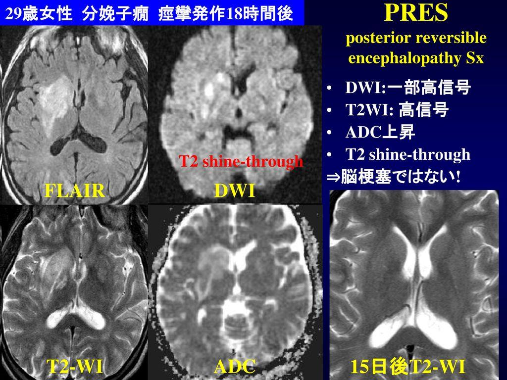 PRES posterior reversible encephalopathy Sx