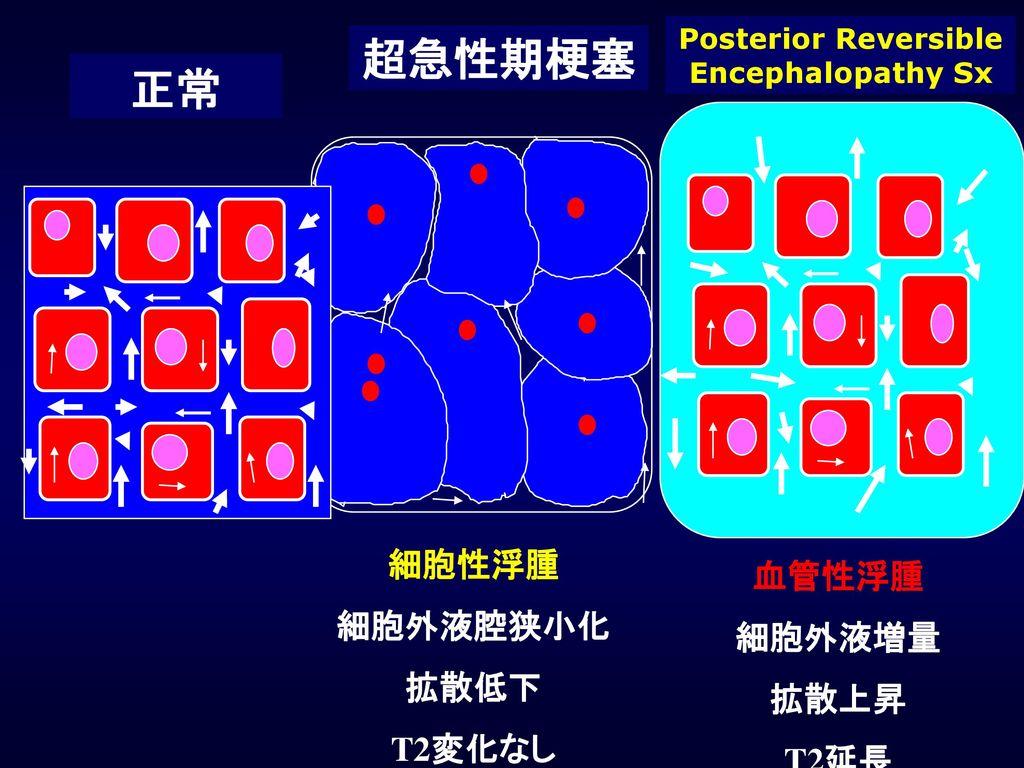 Posterior Reversible Encephalopathy Sx