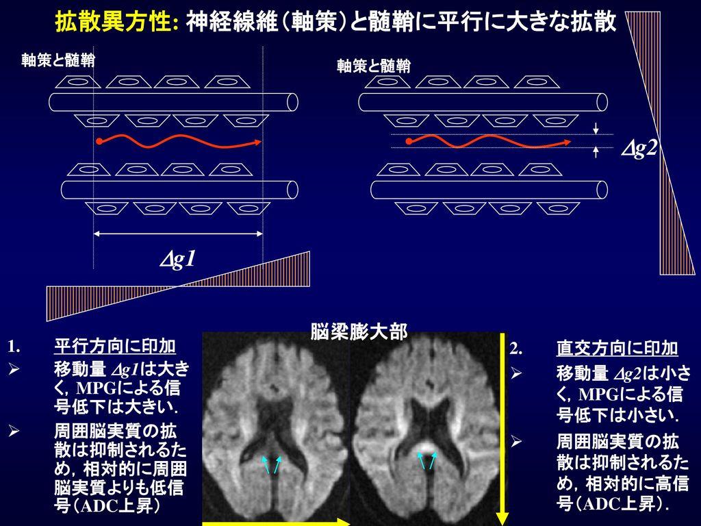 拡散異方性: 神経線維(軸策)と髄鞘に平行に大きな拡散