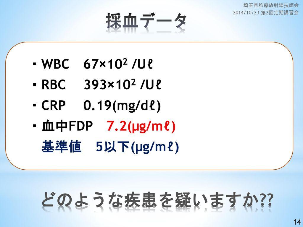 埼玉県診療放射線技師会 2014/10/23 第2回定期講習会 採血データ. ・WBC 67×102 /Uℓ ・RBC 393×102 /Uℓ ・CRP 0.19(mg/dℓ) ・血中FDP 7.2(μg/mℓ) 基準値 5以下(μg/mℓ)