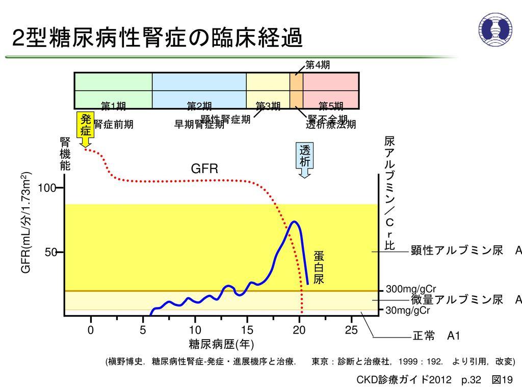 2型糖尿病性腎症の臨床経過 GFR 発症 腎機能 尿アルブミン/Cr比 透析 100 GFR(mL/分/1.73m2) 50