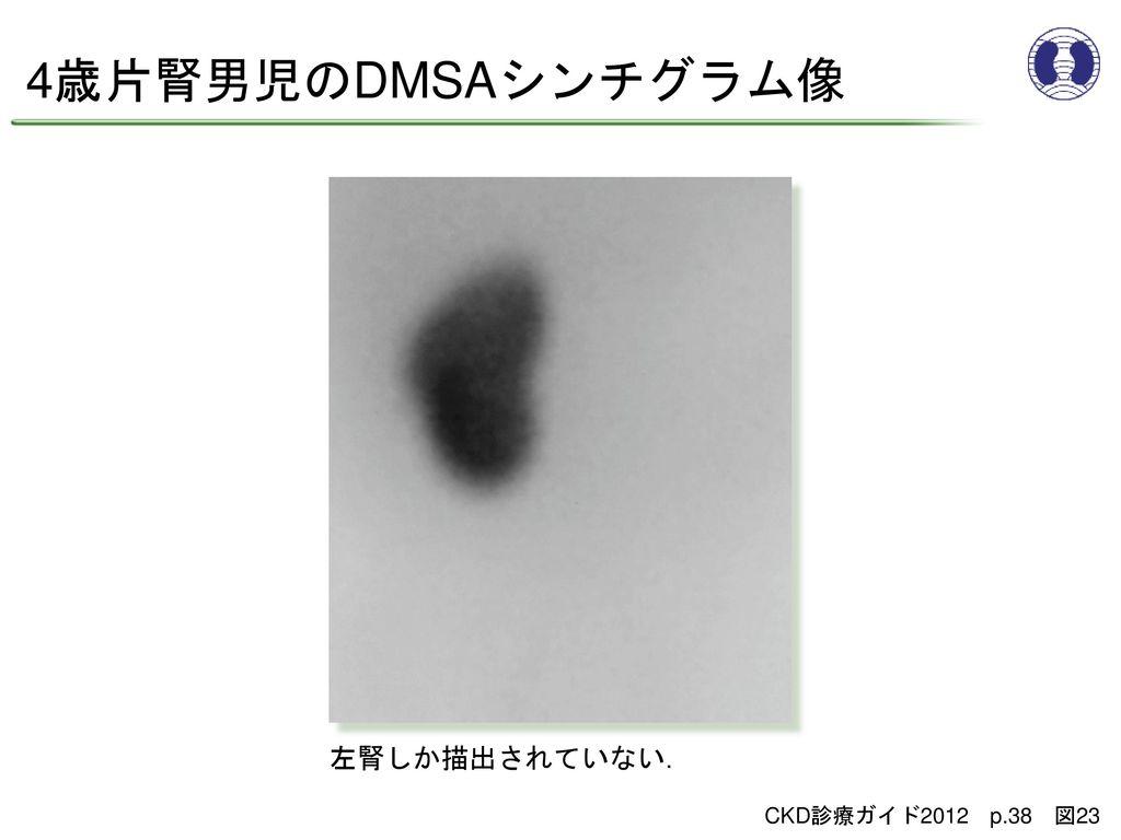 4歳片腎男児のDMSAシンチグラム像 左腎しか描出されていない. CKD診療ガイド2012 p.38 図23