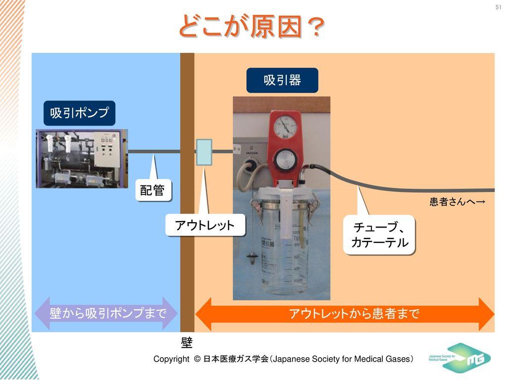 どこが原因? 吸引器 吸引ポンプ 配管 アウトレット チューブ、 カテーテル 壁から吸引ポンプまで アウトレットから患者まで 壁