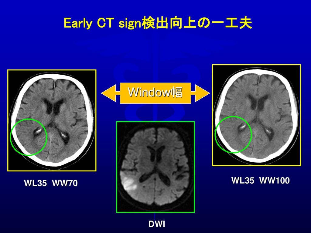 Early CT sign検出向上の一工夫 Window幅 DWI WL35 WW100 WL35 WW70