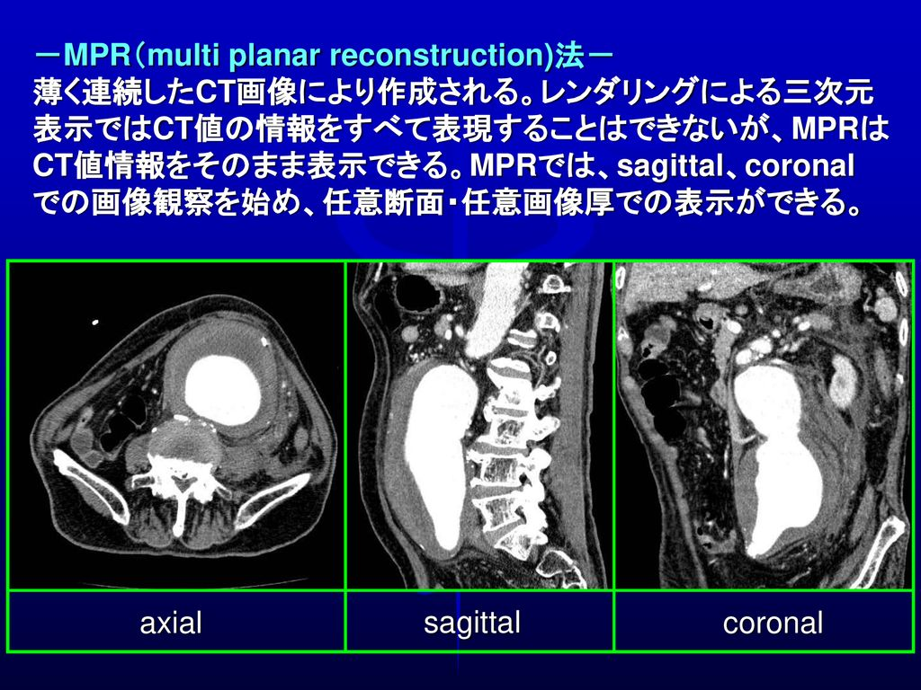 -MPR(multi planar reconstruction)法-