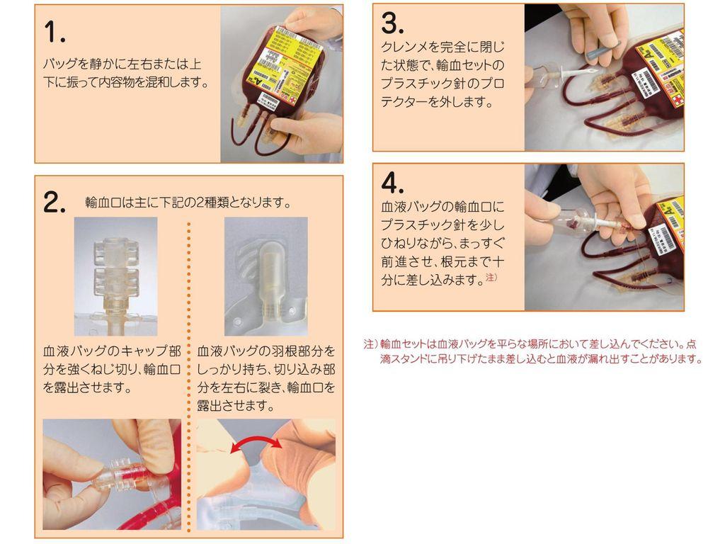 輸血 ルート