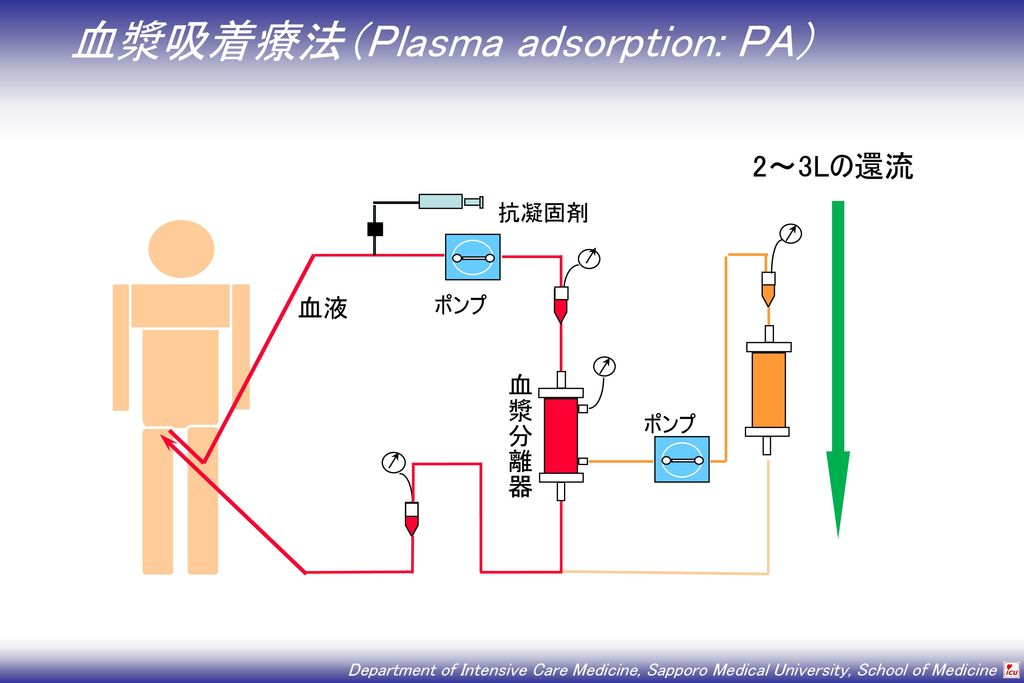 血漿吸着療法(Plasma adsorption: PA)