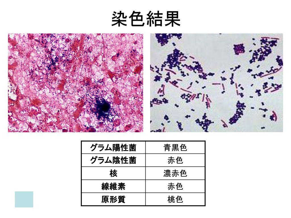 グラム染色 (Gram staining). ...