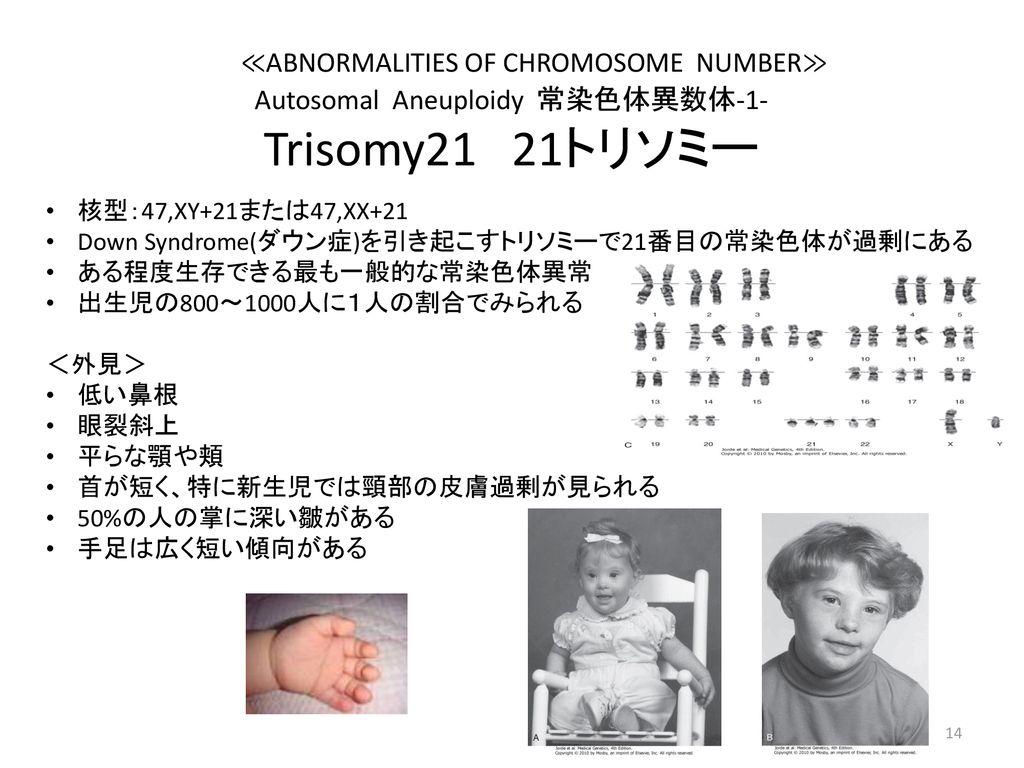 と は モノソミー 2q 染色体異常